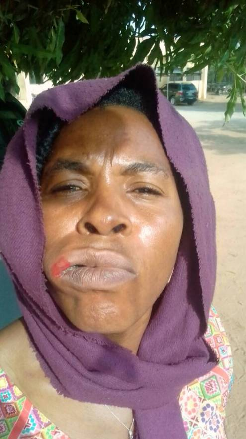 Picture of Benjamin-Ayanwueze after being assaulted by Redeemers estate security guard
