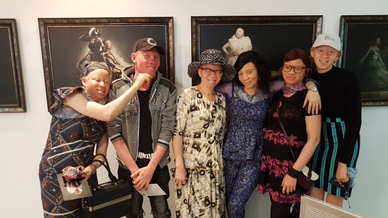 A cross section of persons with albinism at the exhibition