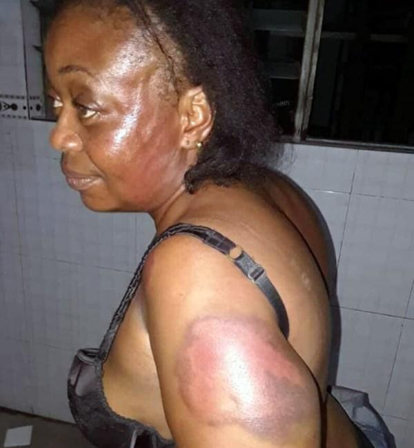 The victim, Ms Iniubong Essien