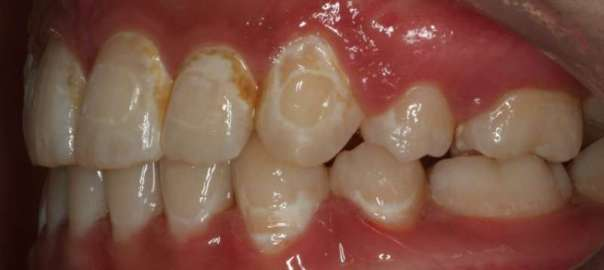 Decayed teeth