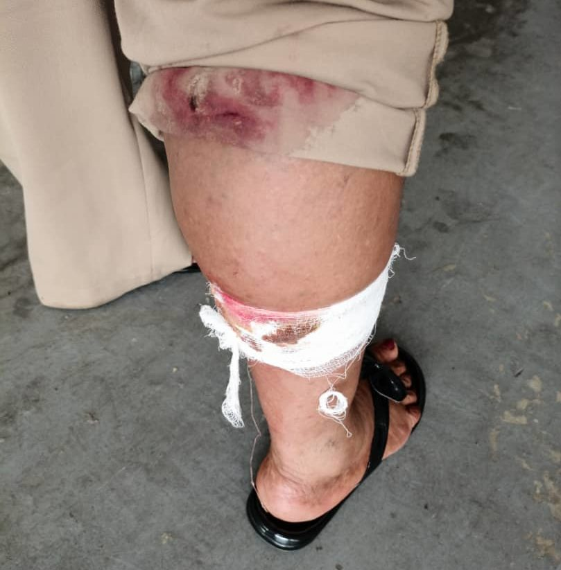 A female officer attacked by the dogs.