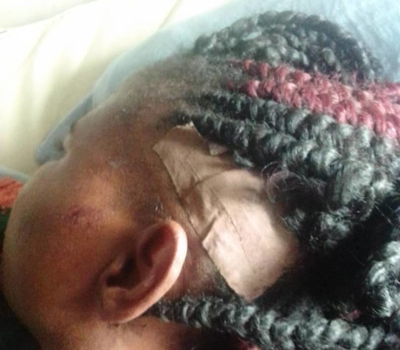 Ms Okafor after her head received some stitches