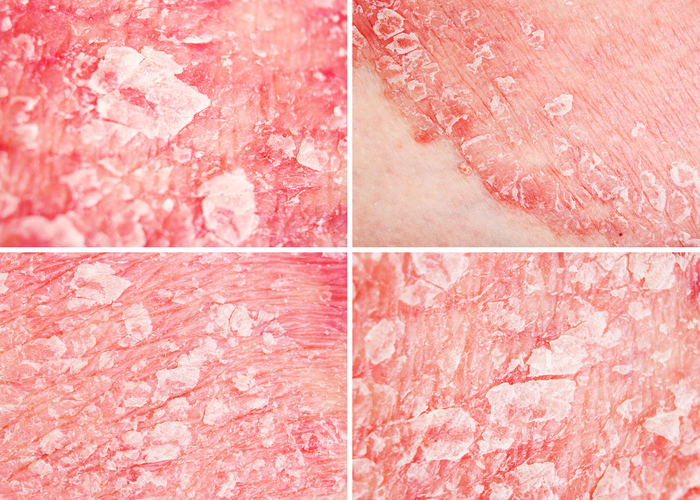 Psoriasis Among Skin Diseases With Largest Impact On Well
