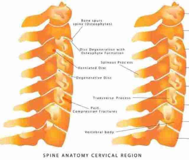 Herniated Disc Cervical Spine