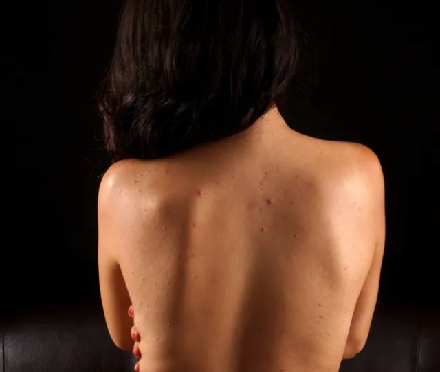 Acne On A Females Back