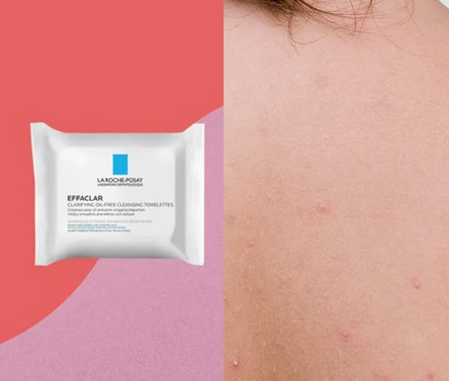 Products Dermatologists Recommend For Body Acne