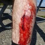 Cykla på Österlen. Ibland händer en olycka! händer en olycka...