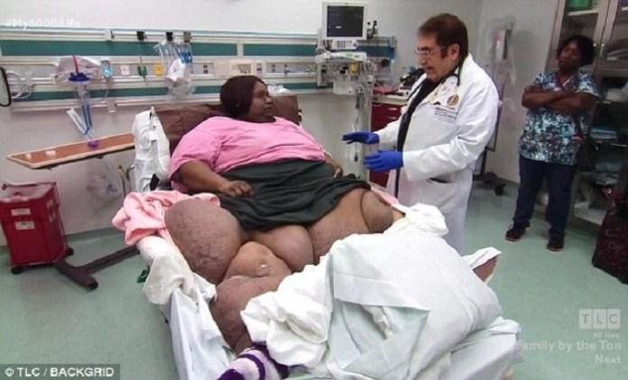 Hình ảnh Kỳ lạ cô gái ăn uống vô độ từ năm 10 tuổi, giờ đã béo phì nặng gần 3 tạ số 1