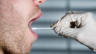 Eine Probe der Mundschleimhaut reicht für das Feststellen der Gewebemerkmale.