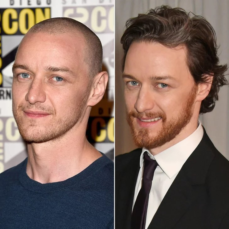 James McAvoy Male Celebrities With Hair Vs Shaved Heads