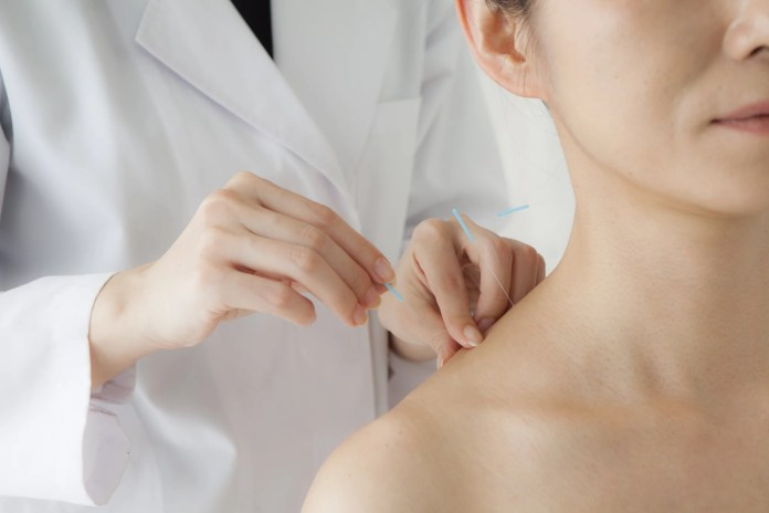 Women receiving acupuncture treatment for beauty