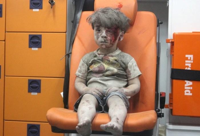 Omran, a four-year-old Syrian boy