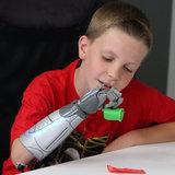 Queste nuove da armi bioniche Ispirate da Disney sono un sogno avverato per i bambini che li hanno bisogno di