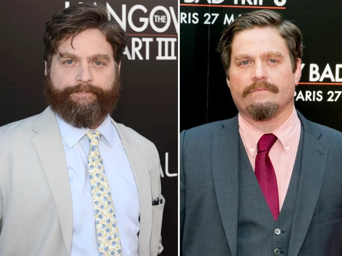 Zach Galifianakis Looks Sharp After Shaving Signature
