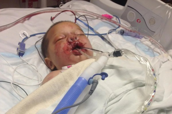 Georgia Toddler in Induced Coma After Being Hurt by Police ...
