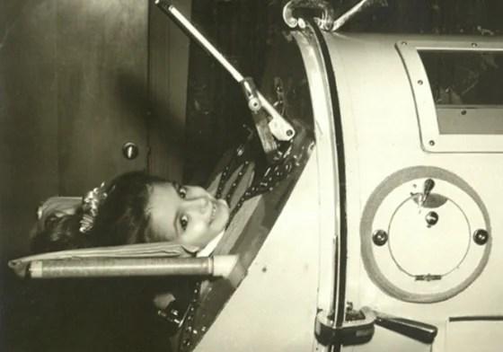 Martha Ann Lillard, of Shawnee, Okla., in an iron lung as a child. Lillard has been in an iron lung since she was paralyzed by polio in 1953 at age 5....