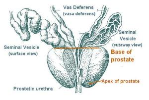 Study: prostate cancer rate unusually high in St Louis