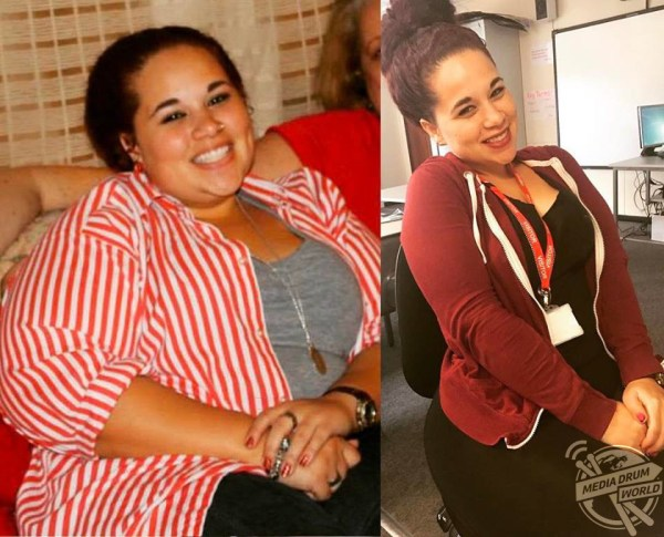 Meet The Woman Whose Extreme Weight Loss Left Her Needing ...
