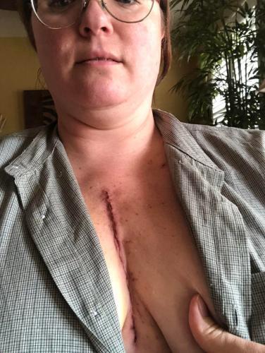 Девушка рассказала о самой страшной операции в своей жизни. От неё остался шрам на груди и запрет на брокколи