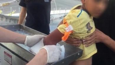 عملية جراحية لطفل سوري يده عالقة في ماكينة فرم اللحمة