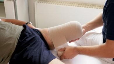 طبيب يخطأ ببتر ساق مريض اليمن بدل اليسار
