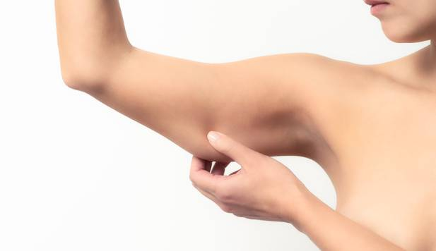 bras gras (L'Equipe)