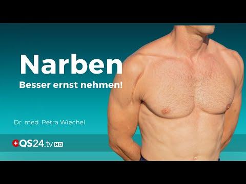 Narben – oft symptomlos und doch ernst zu nehmen | Dr. med. Petra Wiechel | Visite | QS24