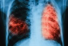 Chest Xray of a TB patient