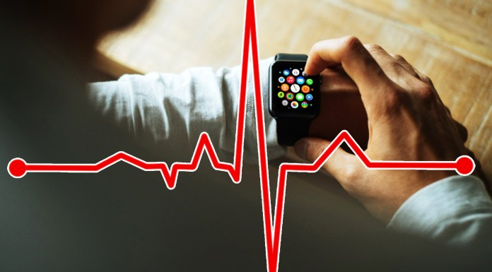 Apple watch, ECG