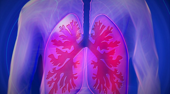 Lungs, respiratory disease, COPD
