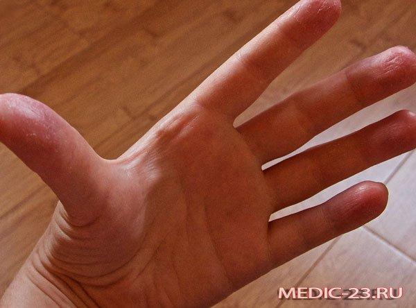 Нейродермит на руке