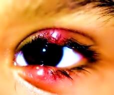 Ячмень на глазу у ребенка - симптомы и лечение народными ...