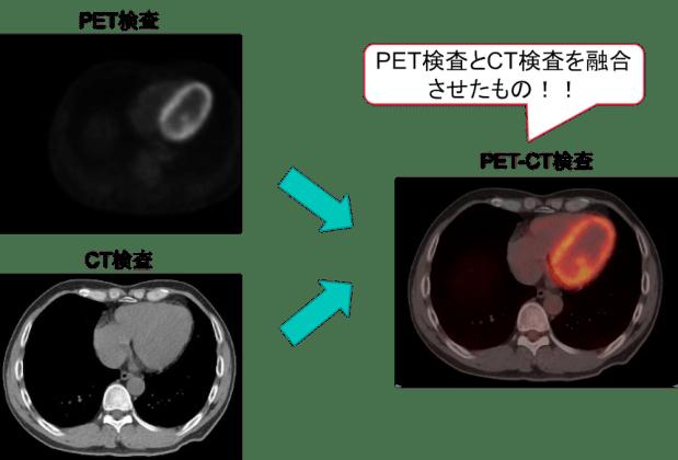 PET-CT findings