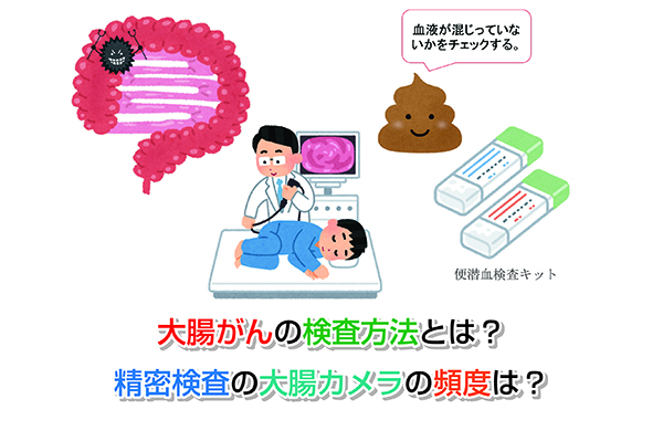 Inspection method of colon cancer Eye-catching image