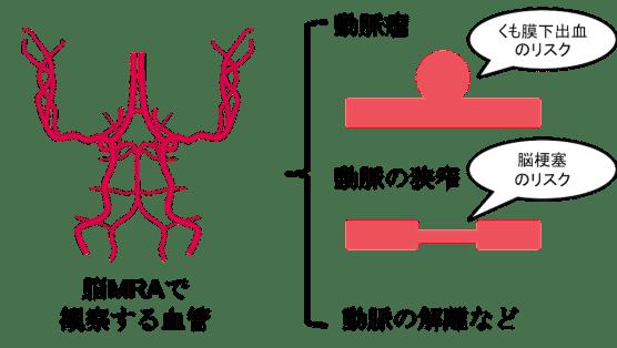 cerebral mra figure1