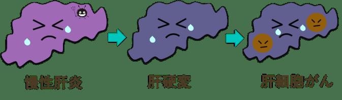 慢性肝炎、肝硬変、肝細胞癌の図・イラスト