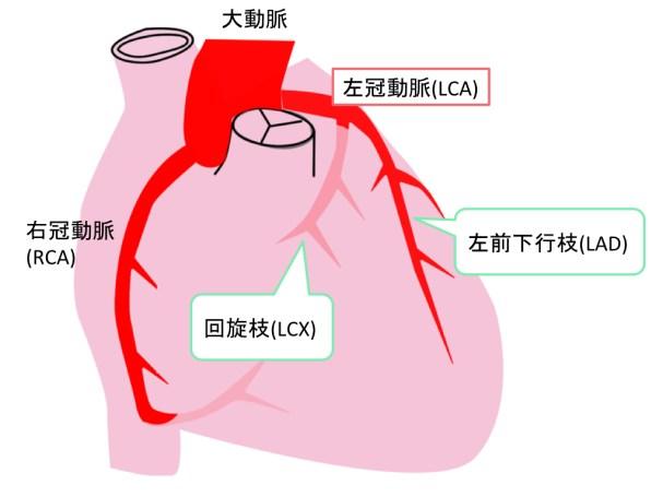 coronal-artery-003
