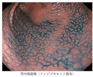 nodular gastritis