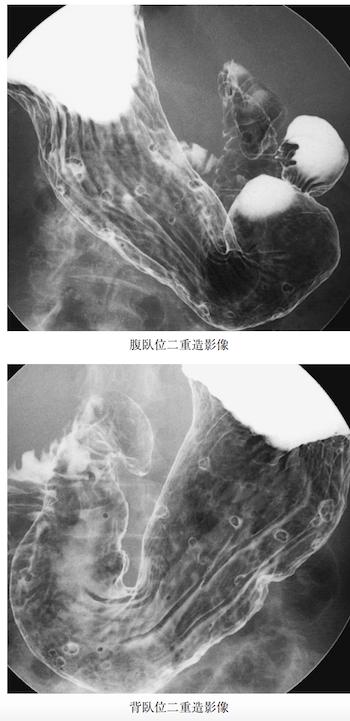 stomach polyps