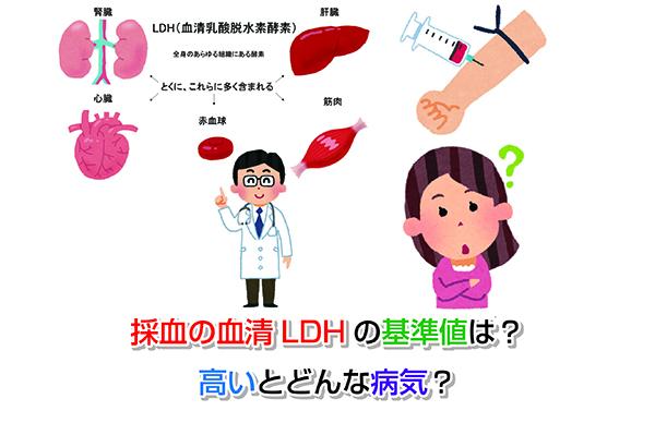 LDH Eye-catching image