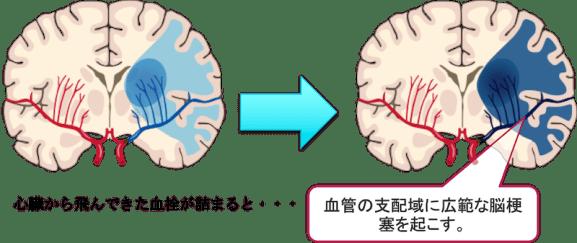 cardiogenic embolism