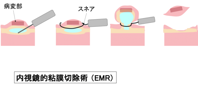 Endoscopic Mucosal Resection