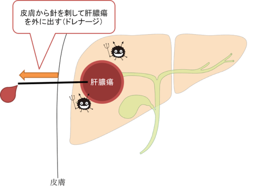 drainage of hepatic abscess