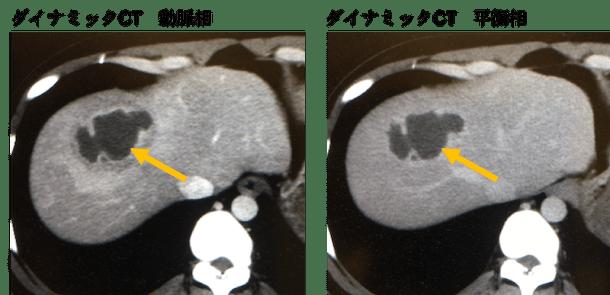 hepatic abscess CT findings1
