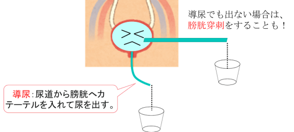 therapy of urinary retention