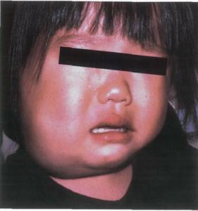 Lymphangioma