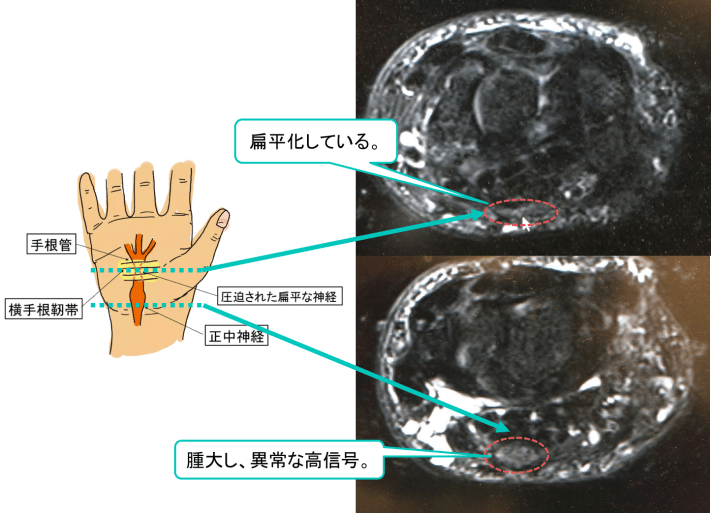 carpal-tunnel-syndrome-mri-findings1