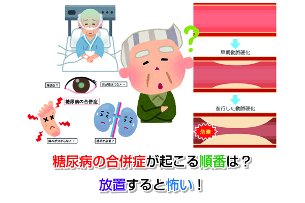 Complication of diabetes Eye-catching image