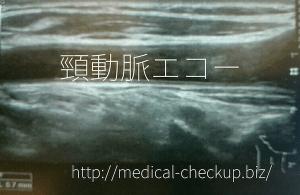 cervical echo doc2