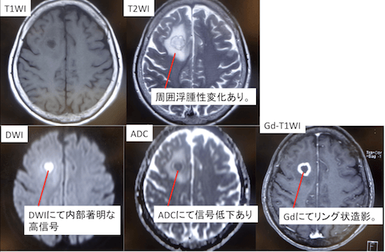 brain-abscess1 doc1